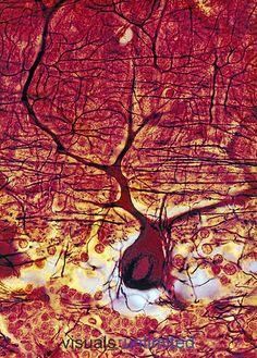 Purkinje neuron in the cerebellum. LM X1000