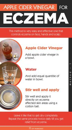 How to use Apple Cider Vinegar for Eczema: ACV is an effective remedy for eczema but it is equally important to know how to use ACV properly. So, here we are providing you with the best ways of ACV to heal eczema.
