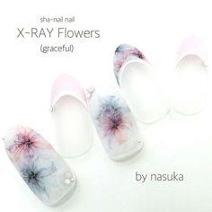 xray flower nails