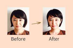 錦糸町の美容鍼灸院 Harico|東京|今話題の美容鍼|美顔・小顔・美肌・体調不良・疲労回復・生理痛などに効果的