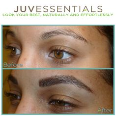 Alopecia universalis with tattooed eyebrows for Best eyebrow tattoo san diego