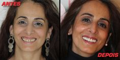 A vida da Sr.ª Albina mudou. Saiba como podemos ajudar a ter uma nova vida > http://www.swissdentalservices.com/pt/landing-portugal/