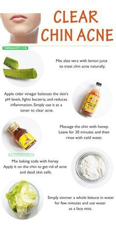 WHY YOU GET CHIN ACNE – AND HOW TO CLEAR IT UP Acne is a common problem thanks to hormonal imbalances in these polluted lives and also due to unhygienic conditions. Every girl has her own acne story depen… Chin Acne Treatment, Natural Acne Treatment, Cystic Acne Treatment, Homemade Acne Treatment, Spot Treatment, Baking Soda For Skin, Skin Care Remedies, Natural Acne Remedies, Home Remedies For Sunburn