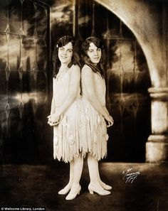 Conjoined British twins Violet (left) and Daisy (right) Hilton were two of the most famous siblings of the early 1900s thanks to their scandalous lives, glamorous style and love affairs