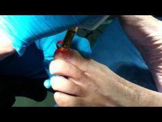 La clínica Dermitek realiza el tratamiento de  los hongos de las uñas con láser.   New treatment of Dermitek Clinic.