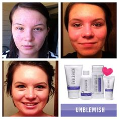 Whether you're a teenager experiencing your first breakouts or an adult experiencing the unwanted flare up, the Rodan + Fields Umblemish Regimen is 100% guaranteed to help!    www.rachaeljamrose.myrandf.com