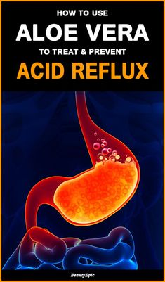 Acid reflux gerd symptoms acid reflux treatment,bad indigestion diet for someone with acid reflux,foods to eat with acid reflux problems heartburn location. What Causes Acid Reflux, Acid Reflux Cure, Acid Reflux Home Remedies, Acid Reflux Relief, Acid Reflux Treatment, Acid Reflux In Babies, Treatment For Heartburn, Natural Remedies For Heartburn