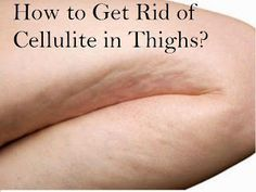 How to Get Rid of Cellulite in Thighs?