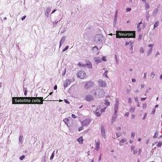 Normal: enteric ganglia (colon)