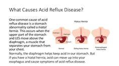 If You Suffer From Heartburn Acid Reflux Or Gerd Consider An All