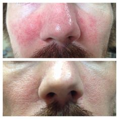 This is my husband Evan. He suffered from a rosacea type rash on his face. These are his before and after pictures - he used mud soap for a week! AMAZING results after we tried so many things! I ❤️ Seacret! That's why I'm an agent!