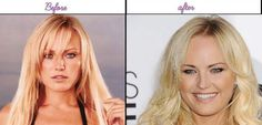 Plastic Surgery Pics Of Malin Akerman She Looks A Lot More Gorgeous Right Before - http://www.aftersurgeryjob.com/plastic-surgery-malin-akerman-looks-gorgeous-right/