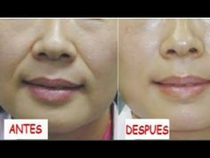 Wrinkles around the mouth which is called laugh lines, smile lines, or nasolabial folds are an unfortunate part of the aging process. Nasolabial folds are th. Lymph Massage, Face Massage, Lines Around Mouth, Face Yoga Method, Anti Aging Creme, Nasolabial Folds, Facial Yoga, Face Exercises, Face Lines