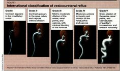 Pediatric Urology - VESICOURETERAL REFLUX