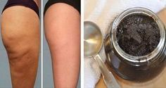 Este es un secreto de Brasil! Es por eso que las mujeres brasileñas tienen increíbles cuerpos tonificados aparentemente impecables. También, muchos dermatólogos utilizan este secreto y cobrar precios altos por este simple tratamiento.