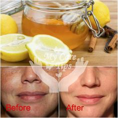 As the summer season has arrived, so there will be a need of beauty tips to keep complexion fair. Here are some beauty tips in Urdu for skin fair in summer. #BeautyTipsInHindi #BeautyTipsForNails #BeautyRoutineChecklist Winter Beauty Tips, Beauty Tips For Skin, Beauty Secrets, Natural Beauty, Beauty Products, Daily Beauty, Beauty Tricks, Organic Beauty, Beauty Ideas