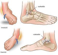 hogyan lehet gyógyítani a boka sérülését)