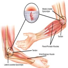 Epicondylitis – Causes, Symptoms, Diagnosis, Treatment and Ongoing care Basics Description Tendon injury characterized by pain and tenderne. Hand Therapy, Massage Therapy, Physical Therapy, Massage Classes, Tendinitis Elbow, Meridian Massage, Elbow Pain, Traditional Chinese Medicine, Massage