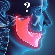 Franklin Dentist Explains About TMJ/TMD Symptoms and Treatment Options Dental Implant Procedure, Dental Implants, Dental Health, Dental Care, Dental Extraction, Sedation Dentistry, Dental Facts, Best Dentist, Dental Surgery