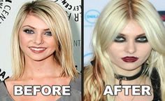 Taylor Momsen Plastic Surgery Plastic Surgery Photos, Celebrity Plastic Surgery, Celebrities Before And After, Taylor Momsen, 5sos, Celebrity Photos, Transgender, Breast, Celebs