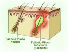 Foliculite é uma inflamação provocada por vírus, bactérias ou fungos. Quando constatada deve-se procurar o dermatologista.