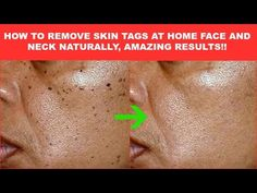 PrettyNflawed - YouTube Small Skin Tags, Skin Tags On Face, Face Skin, Skin Tags What Causes, What Are Skin Tags, Super Glue, Hair Repair, Biotin, Skin Tag Treatment