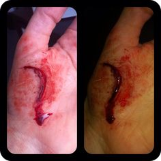 Wound made with derma wax.