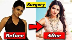 Plastic Surgery of South Indian Actresses Before And After 2022