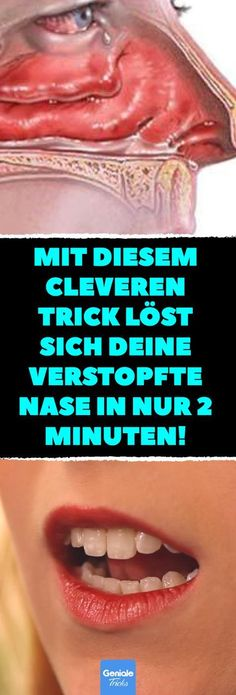 Mit diesem cleveren Trick löst sich deine verstopfte Nase in nur 2 Minuten! Ver… With this clever trick, your stuffy nose dissolves in just 2 minutes! Get stuffy nose quickly. Daily Health Tips, Health And Wellness, Health Fitness, Fitness Workouts, Fitness Tips, Herbal Remedies, Natural Remedies, Infection Des Sinus, Health Promotion