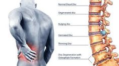 """Back pain: """"Deep Tissue"""" implies that the therapist will be penetrating into your muscle tissue, working IN BETWEEN your muscle tissue fibers – Deep tissue massage is a hands-on body treatment, performed by a trained worker that goes beyond light touch and involves deeper pressure and tissue manipulation http://www.helensvalechiropractor.net.au/back-pain/"""