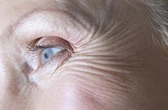 Why Aging Causes Eye Problems and Diseases in the Elderly