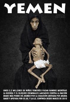 Guerra silenciada, Arabia Saudí, Bombas de razimo, matanza de población civil, Estados Unidos, Yemen: la matanza continua