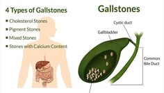4 Foods That Can Painfully Dissolve Gallstones and Kidney Stones Faster Than Any Medication!! Your gallbladder is responsible for storing bile and sending it to your intestines to break down fatty foods. When you eat a meal that has a high fat content, the intestines require bile to break down the fatty food. Ideally, you're gallbladder is then told to send bile to your intestines and help in the digestion process! Unfortunately, a lot of people deal with a malfunctioning gallbladder, and…