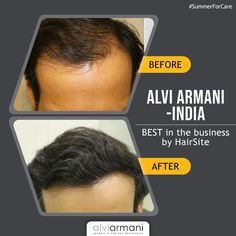 Get your hair done by the experts at Alvi Armani -India,rated absolute best in the business by . Hair Transplant In India, Fue Hair Transplant, Natural Hair Care, Natural Hair Styles, Hair Restoration, Hair Loss, Clinic, Medical, Business