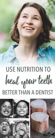 Heal your teeth with nutrition | Empowered Sustenance
