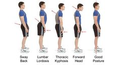 Apply these exercises to correct your bad posture and take a step in the right direction to stopping your #headache and #migraine pain  www.StopHeadachesNaturally.com