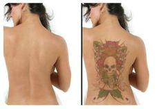 If you're asking, is there no better way to get rid of unwanted tattoos that doesn't involve too much money or painful experience? Actually, there is. There is a natural, inexpensive and pain free way to remove unwanted tattoos in your body. If you really want to know, all the information that you need is in Get Rid Tattoo - Natural Tattoo Removal Solution.