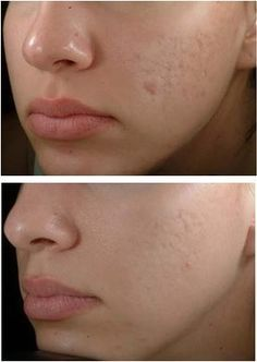 how to get rid of acne scars overnight