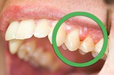 Remedios naturales para encías sangrantes o dentaduras flojas - Mejor con Salud