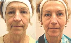 re9 before and after, anti-aging, anti-aging skincare, anti-aging skin care, arbonne skin care
