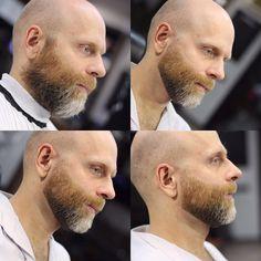 Male pattern baldness beard