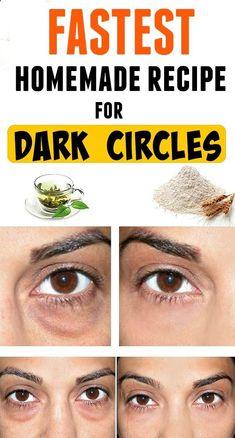Fastest homemade recipe for dark circles #DarkCirclesRemedyDIY