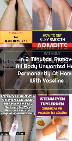 In 2 Minutes, Remove All Body Unwanted Hair Permanently At Home, With Vaseline #HairRemoval #UnwantedHair #LegHairRemoval Best Permanent Hair Removal, Upper Lip Hair Removal, Back Hair Removal, Natural Hair Removal, Hair Removal Diy, Hair Removal Methods, Hair Removal Cream, Remove Unwanted Facial Hair, Unwanted Hair
