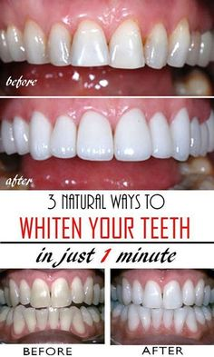3 natural & homemade solutions to get whiter teeth in just a few minutes! Read t… 3 natural & homemade solutions to get whiter teeth in just a few minutes! Read this tutorial and get rid of yellow teeth forever! Teeth Whitening Remedies, Natural Teeth Whitening, Whitening Kit, Fast Teeth Whitening, Homemade Teeth Whitening, Charcoal Teeth Whitening, My Beauty, Health And Beauty, Beauty Care