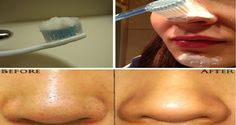 A Method That Really Works: Use Toothbrush And Get Rid Of Blackheads Immediately!
