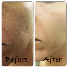 Arctic Berry Peel and Peptide Facial