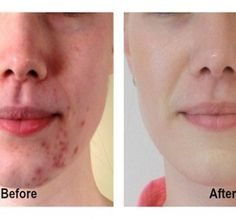 Free Presentation Reveals 1 Unusual Tip to Eliminate Your Acne Forever and Gain Beautiful Clear Skin In Days - Guaranteed! How To Cure Pimples, Acne And Pimples, Acne Scars, Pimple Scars, How To Get Rid Of Acne, Acne Treatment, Weight Loss Program, Ways To Lose Weight, Clear Skin