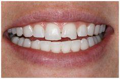 Trám hàn răng cửa bị mẻ là phương pháp hiệu quả nhất để điều trị và phục hình nguyên trạng đối với các trường hợp bị vỡ, mẻ răng cửa do ...