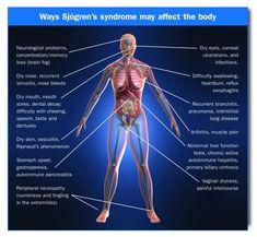 The many ways Sjogren's can affect the body. I have secondary Sjogren's since I already had scleroderma beforehand. I also have neuropathy in my feet which is more commoin in people with Sjogren's. Reflux Esophagitis, Mouth Sores, Myasthenia Gravis, Chronic Fatigue Syndrome, Chronic Illness, Chronic Pain, Invisible Illness, Rheumatoid Arthritis, Natural Remedies