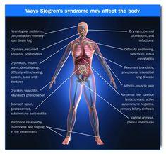 Sjogren's body symptoms